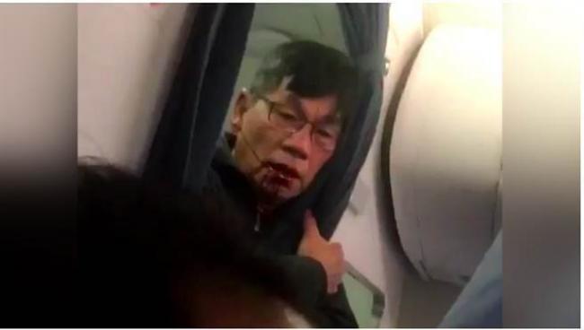 和解了 美联航宣布赔偿华裔医生