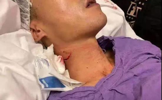 香港首现遥控炸弹 19岁割喉袭警学生被捕