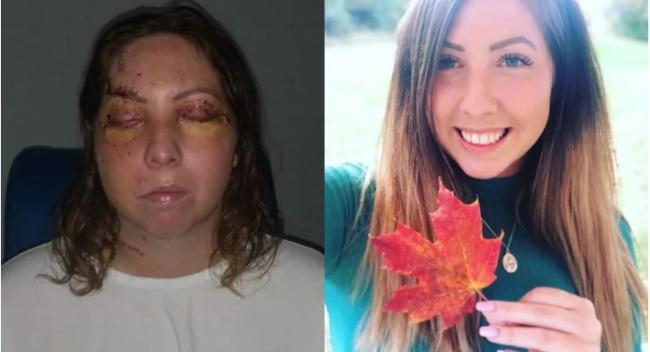 加拿大女子墨西哥度假遇袭  惨遭爆打成猪头