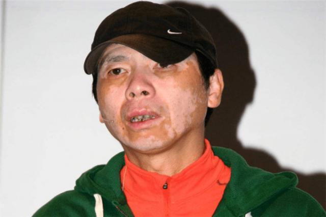 冯小刚白癜风恶化 为何不治病?