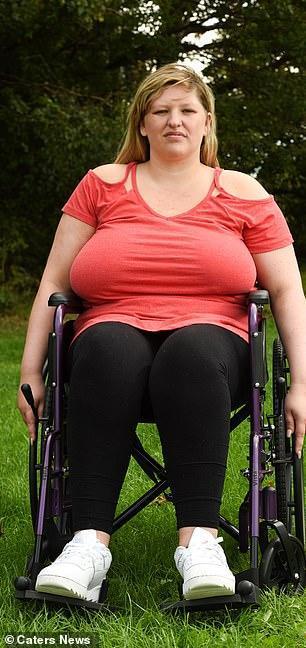 英国前女运动员胸部太大压垮脊柱 坐轮椅4年