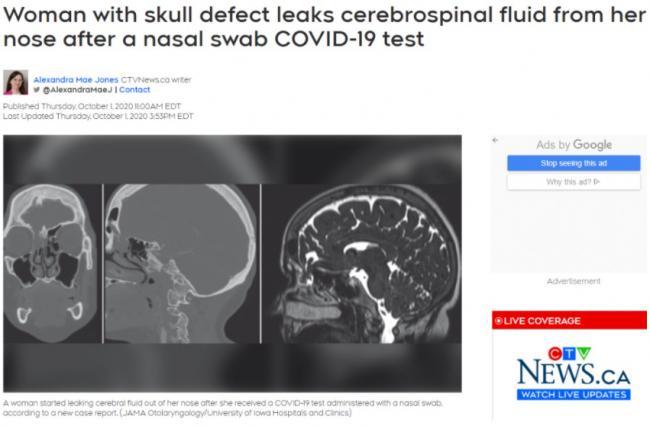 新冠鼻拭检测令脑浆流出 以下疾病慎用该检测