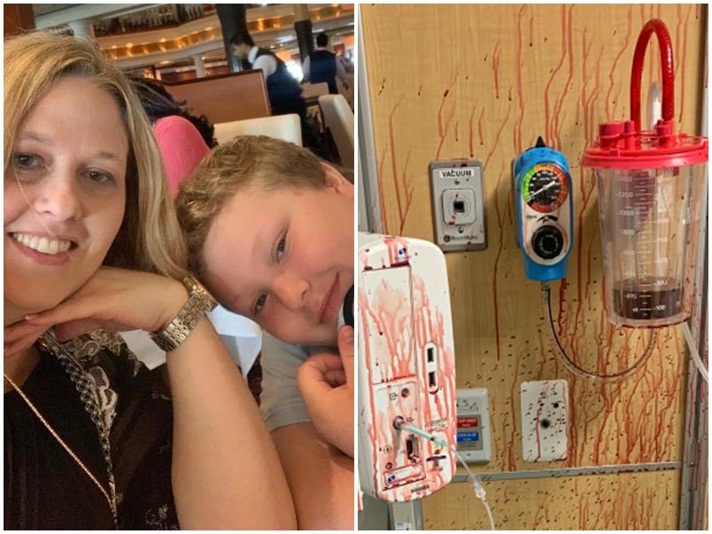 美13岁男童确诊亡 母公开其肺部爆血喷全房照片吁认真看待疫情