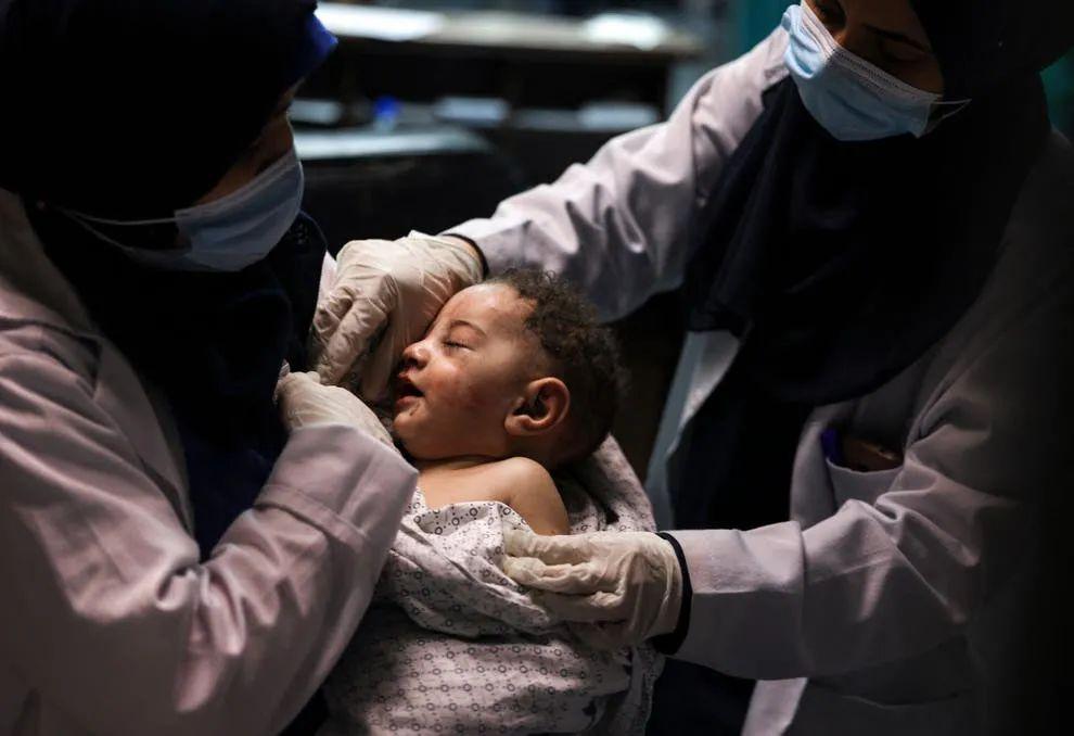 护士正在照料5个月大的奥马尔(图源:外媒)