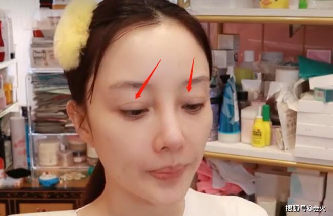 李小璐卸妆出镜曝光真实颜值 双眼皮疤痕明显