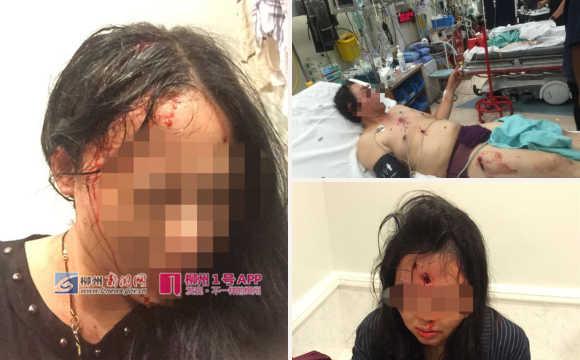 3名中国游客在南非酒店遭劫匪枪击 母女头部中枪