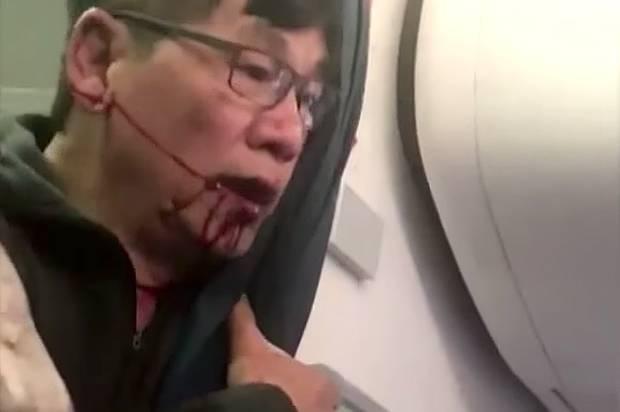 美联航不仅污蔑受害亚裔 还把残疾加国老太赶下机