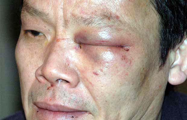 Vancouver police brutality - Yao Wei Wu.jpg