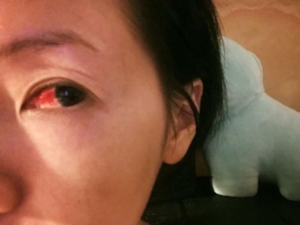 一天涂50几次睫毛增长液 小S险致盲
