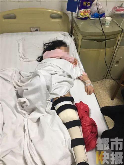 女孩摸了一下仿制兵马俑 被砸得头出血腿骨断裂