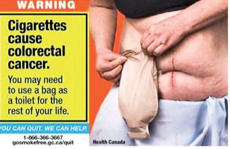 新招:警告吸烟导致阳痿,可能终身用尿袋