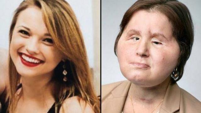 慎入!21岁美国女孩成功换脸 加国医生操刀完成