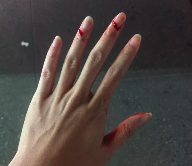 中国女留学生惨遭黑人保安殴打!险些伤重致残