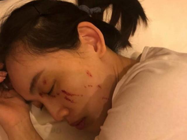 马蓉伤情诊断曝光 王宝强目前还在警局